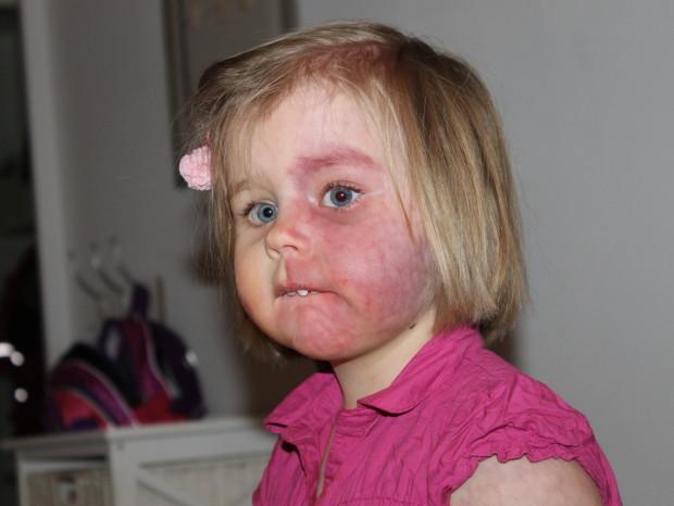 Tuliluomi kuudennen hoitokerran jälkeen