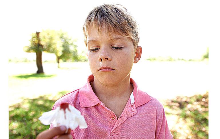 nenäverenvuoto lapsella on yleinen vaiva