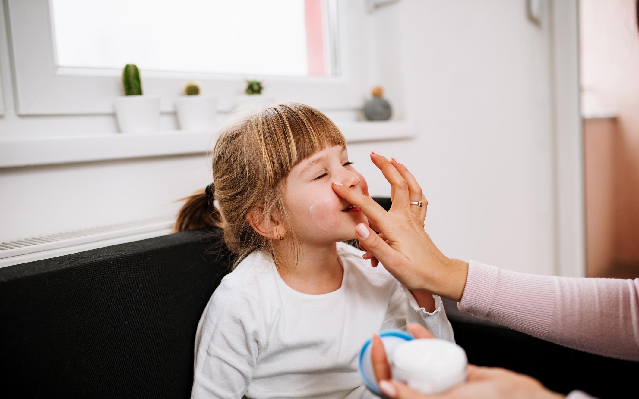 Jos lapsella on atooppinen iho, perusvoiteen käyttö on tärkeää.
