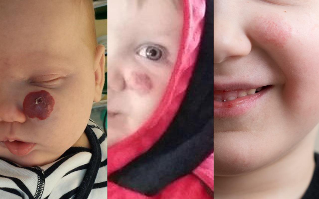 Lapsen mansikkaluomi kasvoissa on haalistunut huomattavasti.