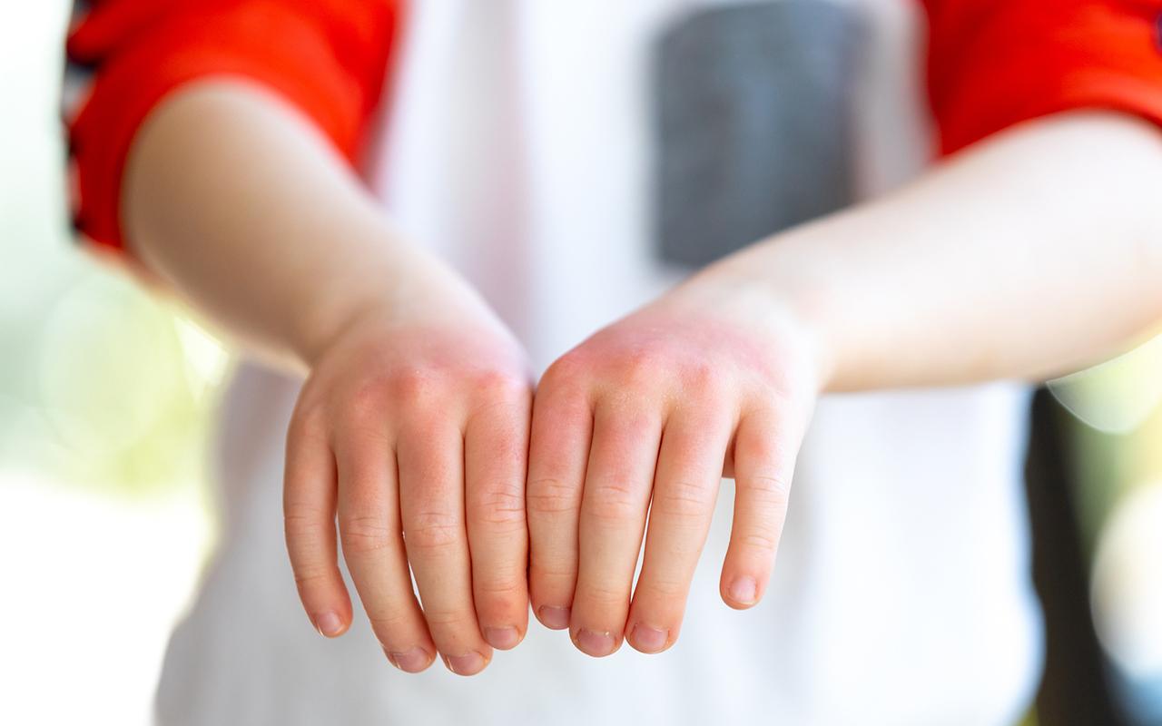 Syyhypunkki on aiheuttanut ihottumaa käsiin. Myös kädet on käsiteltävä huolellisesti voiteella.