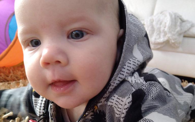 Asfyksian sairastanut viisikuinen Saimi on pienempi kuin hänen isosisaruksensa samanikäisenä.