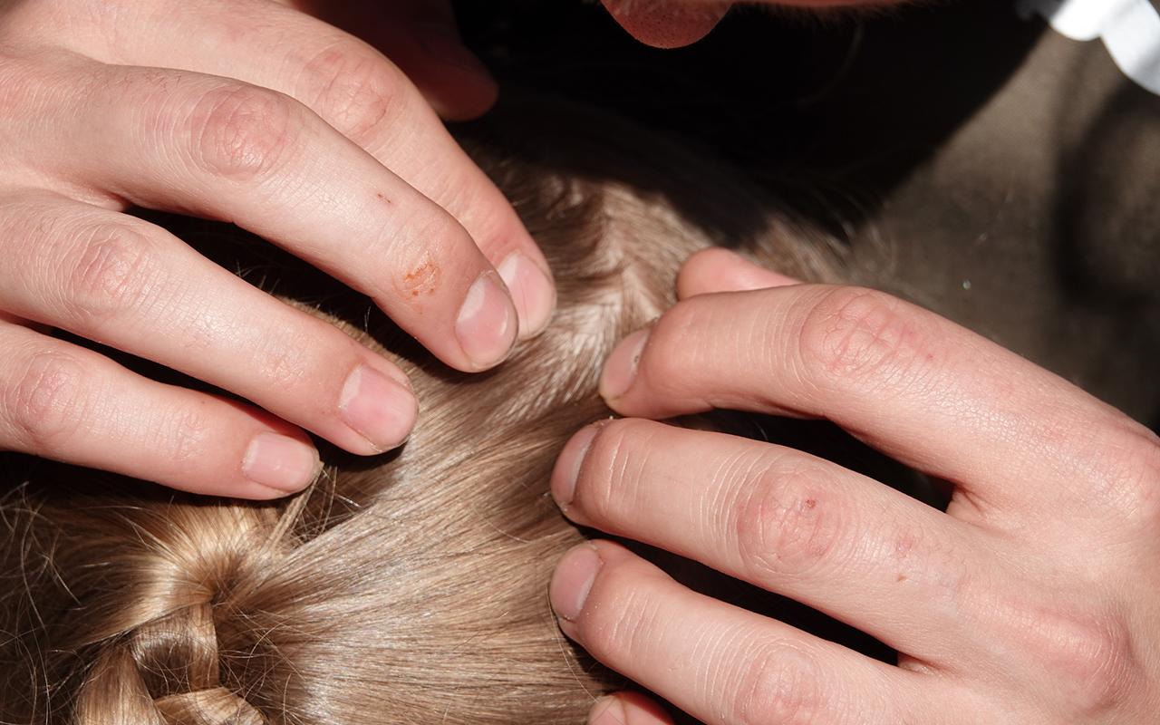 Punkin purema lapsella saattaa joskus löytyä myös päänahasta.
