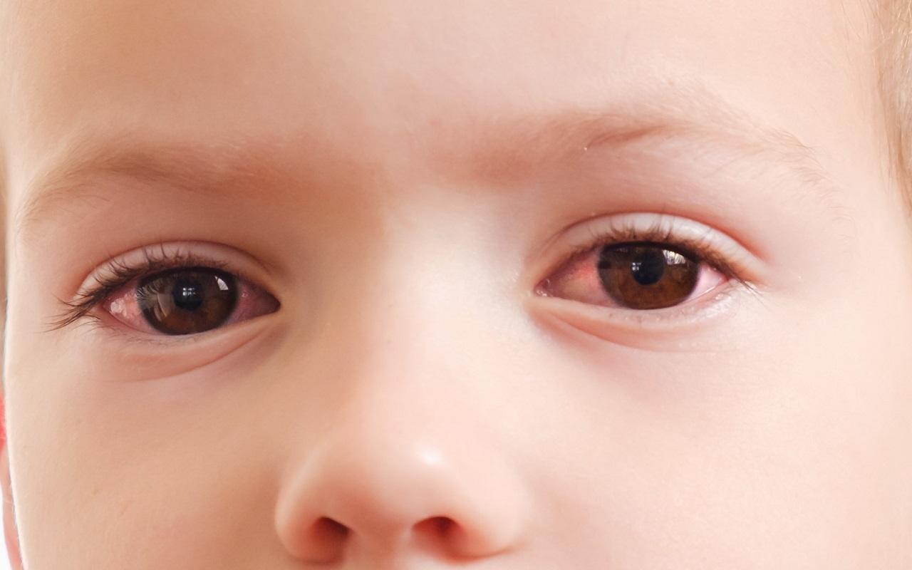 Lapsen silmätulehdus oireilee näkyvästi. Kuvassa lapsen silmät punottavat.